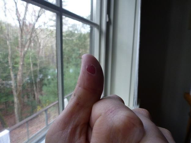 Tubular Thumb